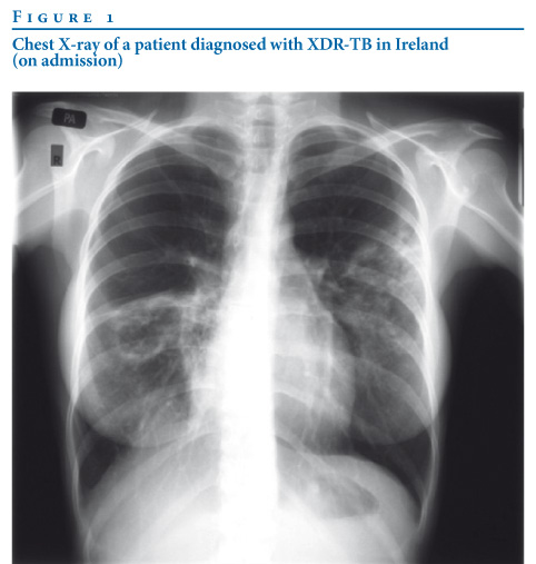 Figure 1. Chest X-ray of a patient diagnosed with XDR-TB in Ireland ...