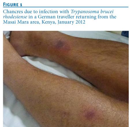 Eurosurveillance - Trypanosoma brucei rhodesiense ... Trypanosoma Rhodesiense